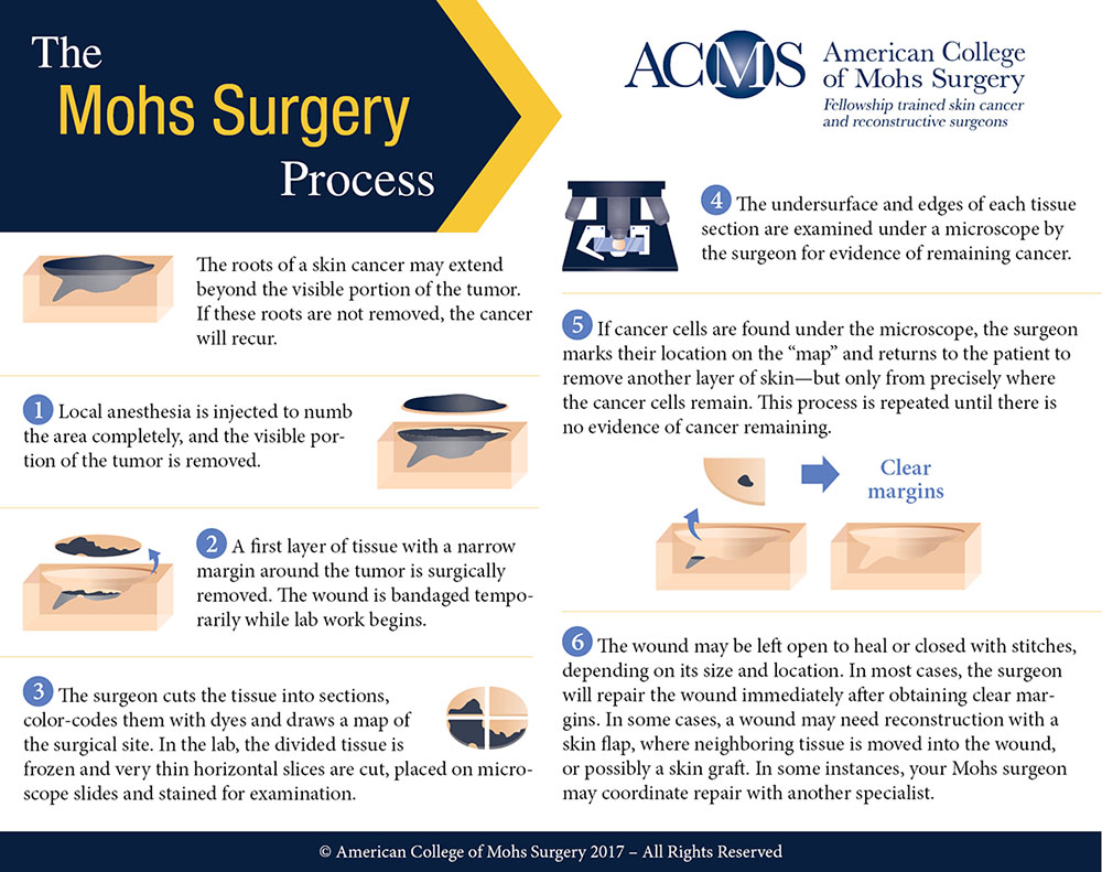 ACMS Mohs Surgery Process Infographic