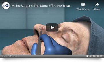 Mohs Surgery | The Most Effective Treatment for Skin Cancer